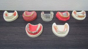 入れ歯の種類ラインナップ